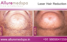 Laser Hair Reduction Treatment Before and After Photos