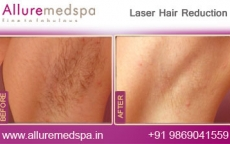 Laser Hair Removal Armpits Before And After Photos in Andheri, Mumbai