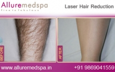 Laser Hair Removal On Legs Before & After Results in Andheri, Mumbai, India