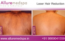 Laser Hair Removal -Mens Back Area Before After Photos in Andheri, Mumbai