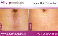 Laser Hair Removal: Upper and Lower Abdomen | Stomach Before and After Images in Andheri, Mumbai