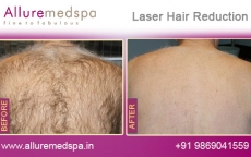 Laser Hair Removal Backside Before And After Images in Andheri, Mumbai, India