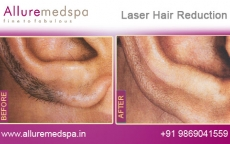 Ears Laser Hair Removal For Men Before and After Photos in Andheri, Mumbai