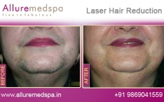 Facial Laser Hair Removal Before After Pictures in Andheri, Mumbai, India