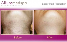 Neck Laser Hair Removal Before And After Pictures in Andheri, Mumbai, India
