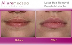 Laser Hair Removal Moustache Before After Results in Andheri, Mumbai, India