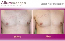 Laser Hair Removal Male Chest Before and After Photos in Andheri, Mumbai, India
