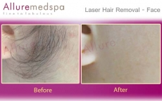 Laser Hair Reduction Before And After Images