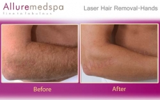Hands Laser Hair Removal Before And After Pictures in Andheri, Mumbai, India