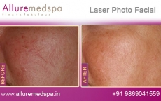 Laser Photo Facial Before and After Gallery at Affordable Cost in Mumbai, India