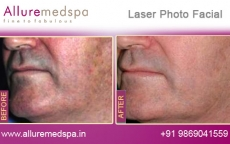 Photo Facial Rejuvenation Before and After Images at Transparent Price in Mumbai, India
