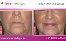 laser-photo-facial-before-and-after-photos-andheri-west-mumbai-india