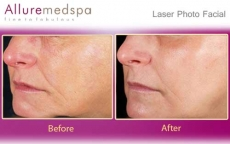 laser-photo-facial-before-and-after1