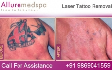 Laser Tattoo Removal Before and After Photos by Celebrity Cosmetic Surgeon Dr. Milan Doshi in Mumbai, India