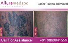 Permanent Laser Tattoo Removal Before and After Pictures at Reasonable Price in Mumbai, India