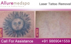 Permanent Tattoo Removal Before and After Images by Celebrity Cosmetic Surgeon Dr. Milan Doshi in Mumbai, India