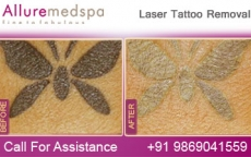 Laser Tattoo Removal Before and After Gallery at Reasonable Cost in Mumbai, India
