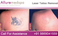 Permanent Laser Tattoo Removal Before and After Gallery by Celebrity Cosmetic Surgeon Dr. Milan Doshi in Mumbai, India
