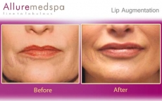 Lip Augmentation Surgery Before After Photos in Andheri Mumbai, India