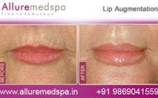 Lip Enhancement Before & After Pictures in Andheri, Mumbai, India
