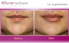 Lip Enhancement | Lip Injection in Andheri, Mumbai, India