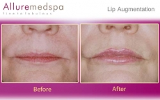 Lip Augmentation, Lip Injections, Lip Enhancement, Lip Fillers Before & After Photos in Mumbai, India