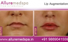 Lip Augmentation Surgery Before & After Gallery, Images in Mumbai, India