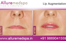 Lip Augmentation/ Lip Fillers Before & After Photos in Mumbai, India