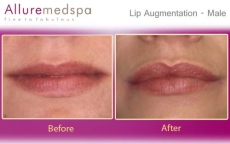 Lip Augmentation Before & After Photos - Andheri, Mumbai, India