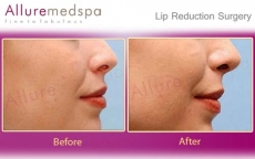 Lip Reduction Before & After Photos in Andheri, Mumbai, India