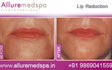Lip Reduction Surgery Before and After Gallery, Photos in Mumbai, India