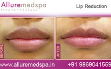 Lip Correction Before & After Photos in Mumbai, India