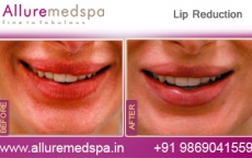 Plastic Surgery Lip Reduction Before & After Photos in Mumbai, India
