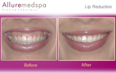 Lip Reduction Surgery Procedure Before & After Pics in Mumbai, India