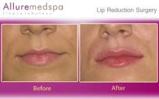 Lip Reshaping Surgery Before and After Images in Andheri, Mumbai, India