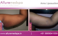 Brachioplasty Before and After Photos in Mumbai, India