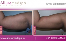 Arm Lift Surgery & Arms Liposuction Before and After Photos in Mumbai, India