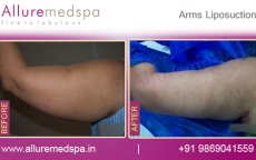 Laser Arm Liposuction Before and After Pictures in Mumbai, India