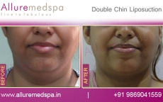 Double Chin Liposuction/ Neck Liposuction Before and After Before & After Photos in Mumbai, India