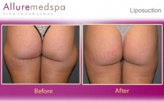 Saddlebags Liposuction Before and After Photos