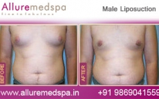 Male Liposuction Before After Photos