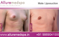 male-liposuction-before-and-after-image-mumbai-india