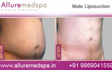 Male Liposcupture Before After Photos
