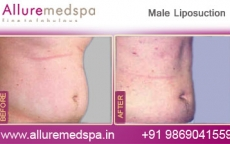 Male Fat Removal Lipo Before After Photos