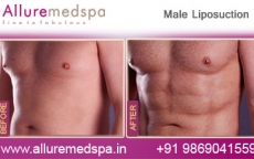 male-liposuction-before-and-after-pic-mumbai-india