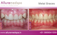Ceramic Metal Treatment for Teeth Before after Photos