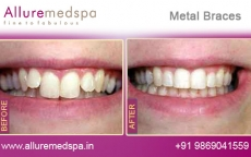 Ceramic Metal Treatment for Tooth Before after Photos