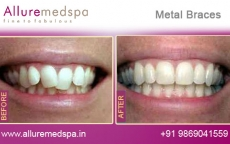 Dental Metal Braces Treatment Before after Photos