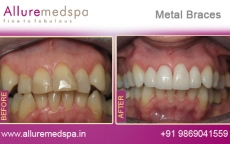 Ceramic Metal Treatment Before for Tooth after Photos