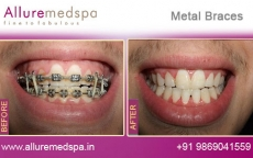 Dental Metal Braces Treatment for Teeth Before after Photos